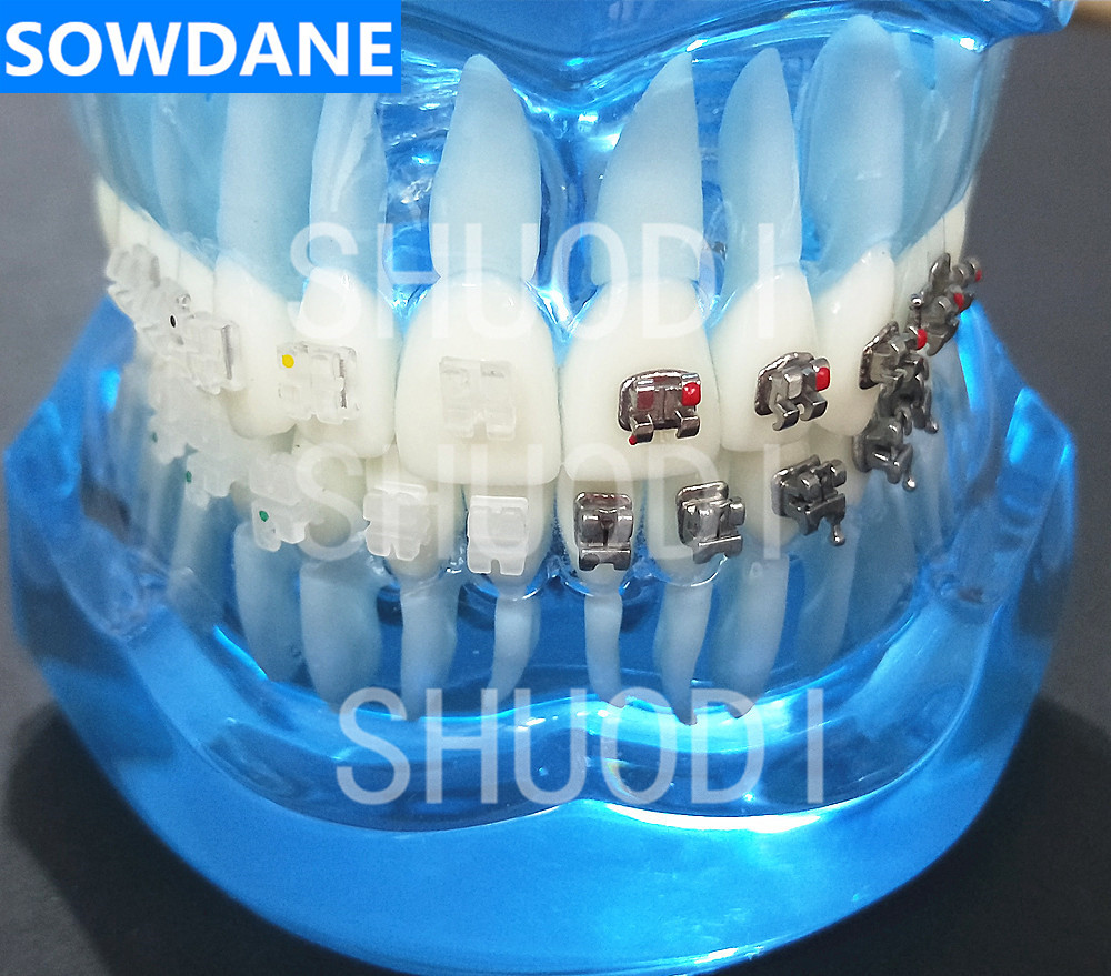 Blue Transparent Dental Orthodontic Model with Ceramic and Metal Brackets for Patient Communication Left Right in Teeth Whitening from Beauty Health