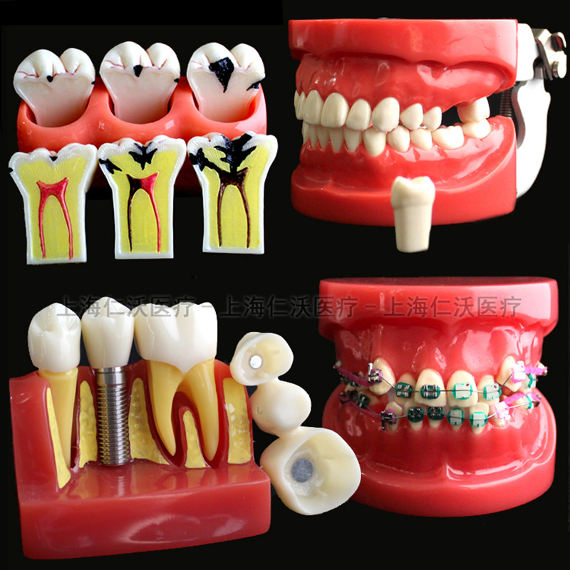 Various-Dental-Teeth-Models-Are-Used-For-Teaching-And-Hospital-Dentist-Material (3)