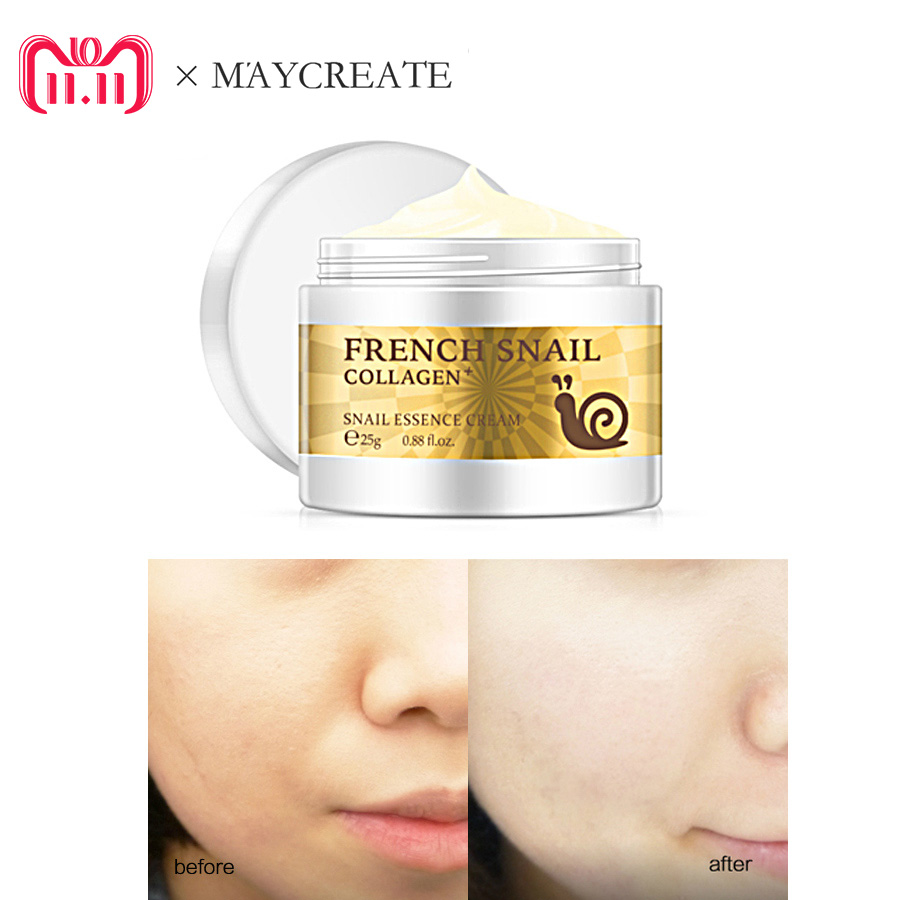MayCreate Snail Face Cream Acne Scar Removal Cream Skin Care For Face Whitening Cream Snail Stretch Marks Nourishing For Face best stretch marks cream get amazing results used for removal and prevention of the appearance of both old and new stretch marks top stretch mark cream 90 day guarantee high quality contains natural and organic ingredients
