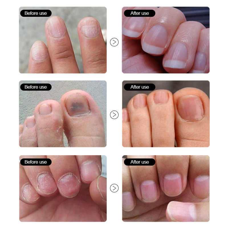 Detail Feedback Questions about ROSALIND Nail Fungus oil ...