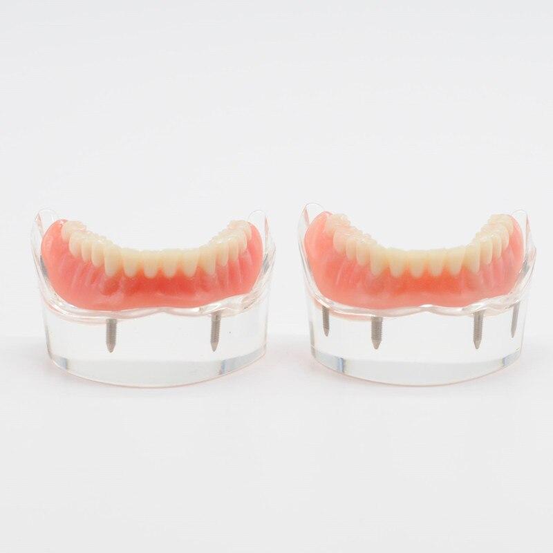 Mandibulaire inférieur avec restauration des Implants 2/4 enseigner le modèle pour l'étude dentaire