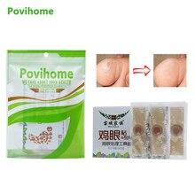 Povihome 40 pçs/caixa Esfoliante Pé De Milho Remendo Pés Macios Problema Rígido Remover Calos Mortas Da Pele Tratamento de verrugas Plantares C584