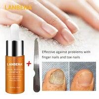LANBENA Nail Repair Essence Fungal Serum Nail Treatment Remove Onychomycosis Nail Tip Nourishing Lightening Hand And Foot Care