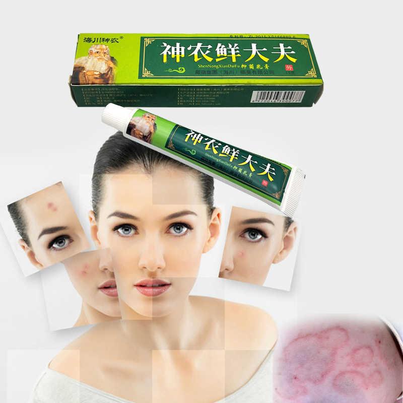 15g doğal bitkisel ilaç Anti bakteri krem egzama merhem işleme yüksek kaliteli bitkisel sedef kremi cilt bakım kremi