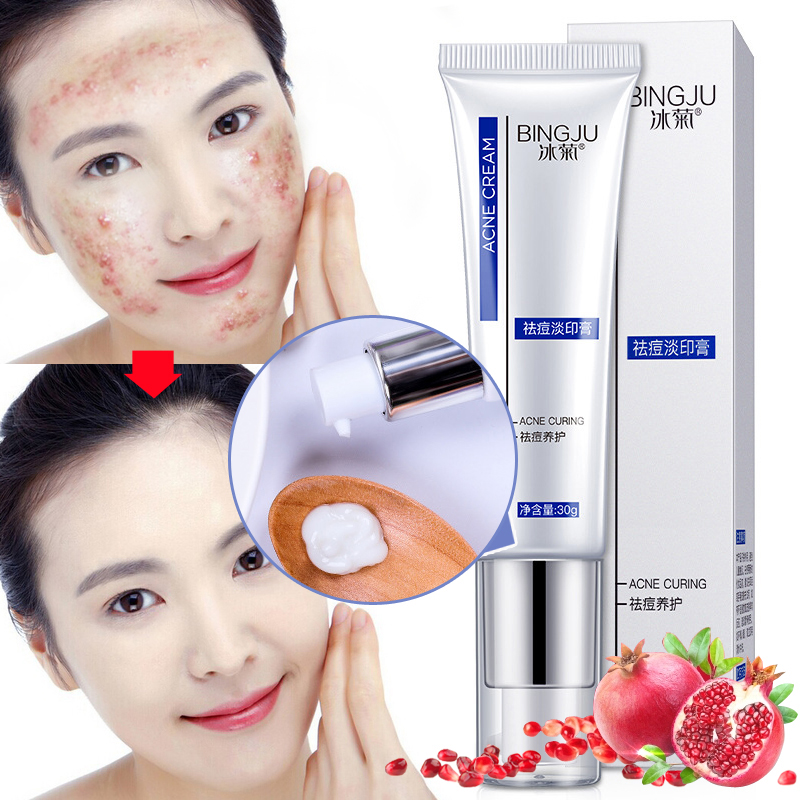 Face Acne Cleaning Cream Quickly Remover Anti Acne Treatment Oil Control Skin Repair Shrink Pores Acne Scar Whitening Cream 30g