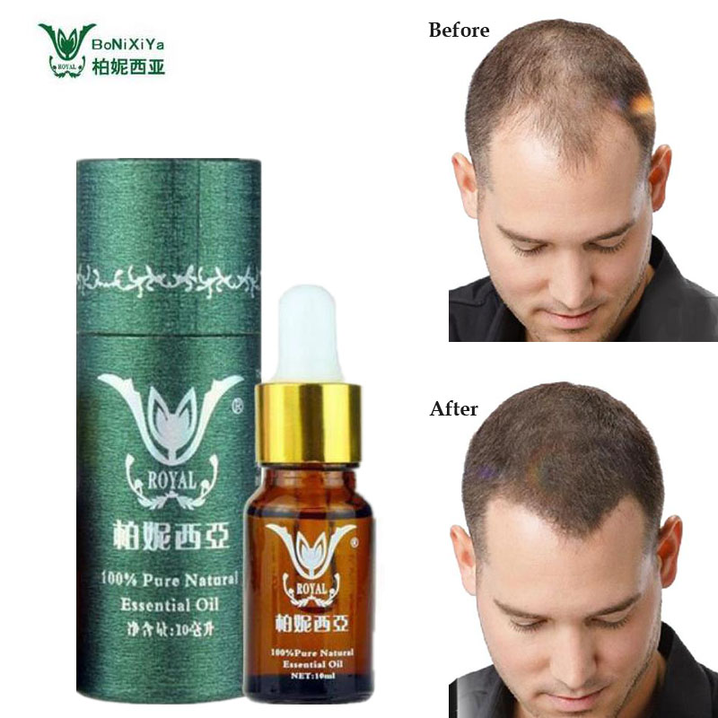 Hair Growth Products Natural With No Side Effects Faster