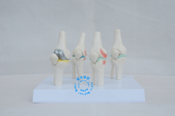 Free shipping&Knee joint model,The human skeleton model,Arthropathy of the knee joint model,medical