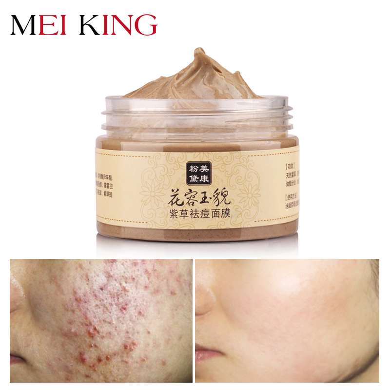 1Acne Treatment Mask MEIKING Remove Blackhead Acne  Mask For All Skin Types Washing Type Women Mask 120g MM-1228ZC Facial mask