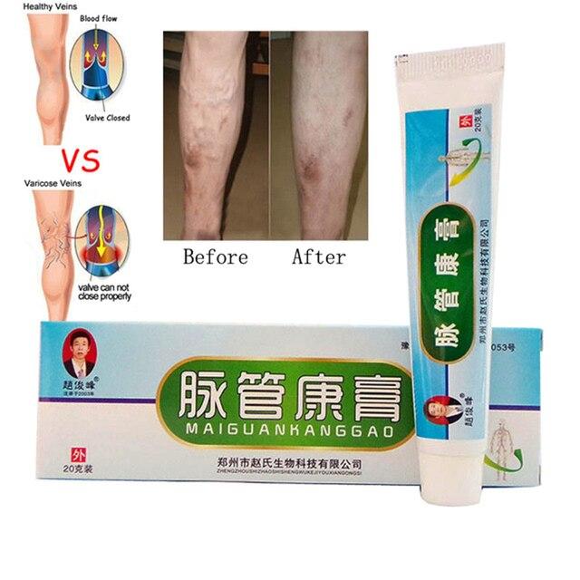 US $2 9 |Makeup Varicose Veins Ointment Vasculitis Treatment Phlebitis  Angiitis Inflammation Blood vessel Rotten legs Makeup Cream-in Deodorants &