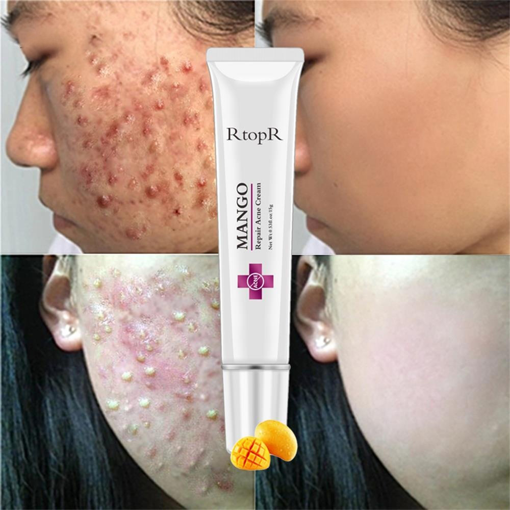 Repair Acne Cream Anti-acne Spot Treatment Scar Blackhead Cream Hrink Pores Whitening Moisturizing Facial Skin Care TSLM1