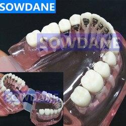 Dental Kieferorthopädische Modell Mit Lingual Klammern für Zahnarzt-Patienten Kommunikation Studie Transparent Zahn Modell