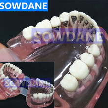 Dental Orthodontic Model With Lingual Brackets for Dentist-Patient Communication Study Transparent Tooth Model
