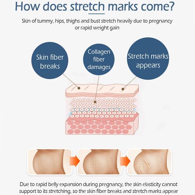 VG Crocodile Pregnancy Stretch Marks Removal Cream