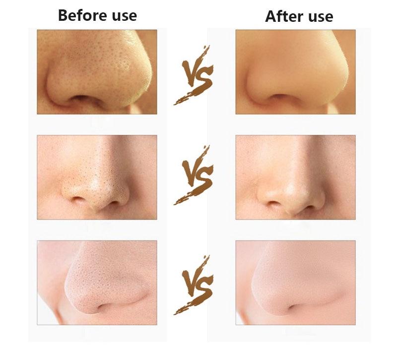 HOT Ultrasonic Purificador Da Pele Facial Acne