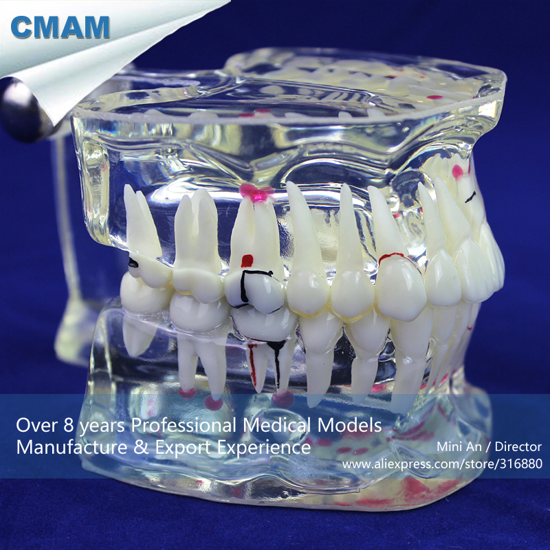 12568 CMAM-DENTAL09 Adult Dental Teeth Model, Transparent Disase Model Show Caries and Pathologies dental pathology model anatomical model teeth model dental caries periodontal disease demonstration model gasen den050