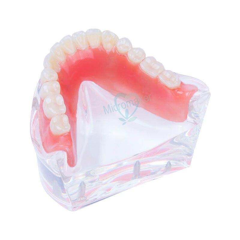 Étude d'enseignement dentaire modèle de dents de prothèse dentaire modèle de dents inférieures mandibulaires intérieures amovibles