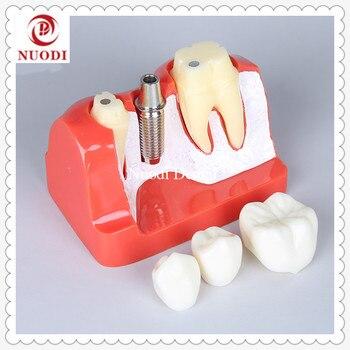 Dental Impalnt Teeth Model/Dental Implant Bridge Model Removeable bridge crown /4x Implant fixture Model/Education teeth model