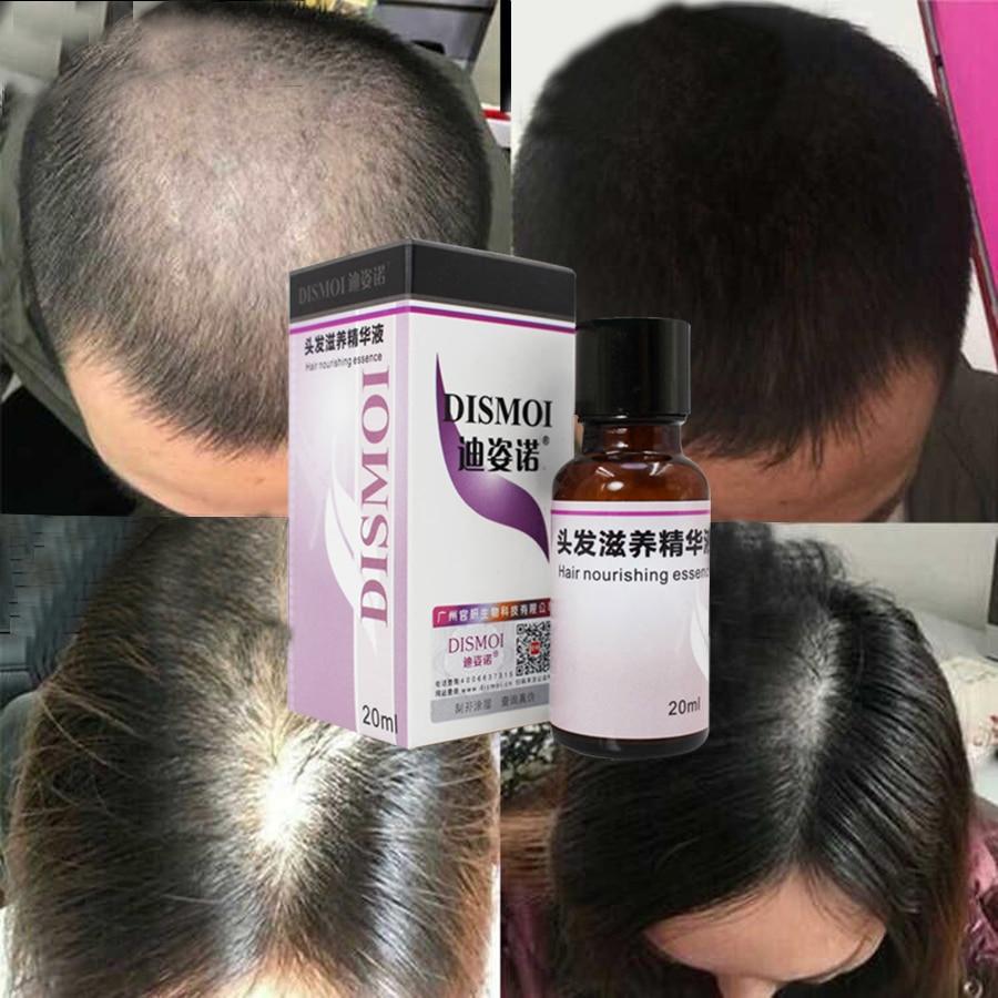 LAIKOU Hair Care Scalp Treatments Nutrition Essential Oil Fast Powerful Hairs Growth Serum Repai Loss Mask