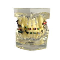 1 Piece Transparent Dental Tooth Orthodontic Model Malocclusion Models Teaching Model Dentistry Material Dentist Tools