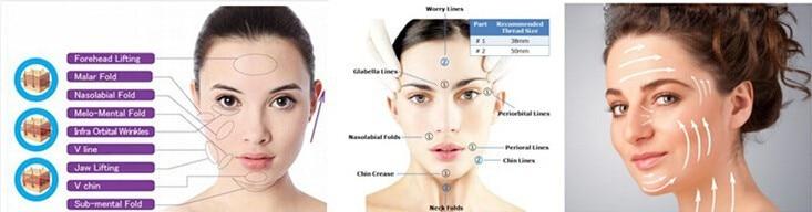Anti aging V line PDO 3D Cog Face Lift Thread on Aliexpress com