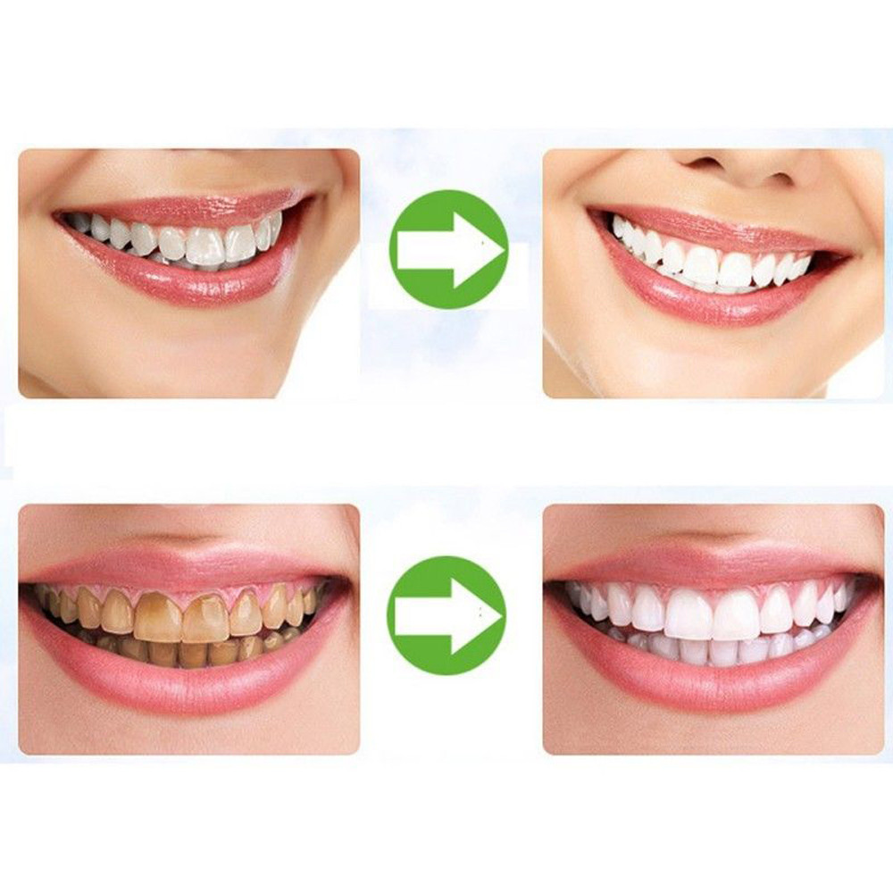Teeth Whitening Teeth Whitening Powder Natural Tooth Whitening Dental Instruments Organic Activated Charcoal Bamboo Toothpaste 2019 Veneers #79