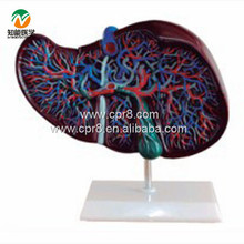 BIX-A1048 Life Color  Liver Anatomical Model WBW404