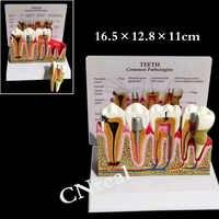 1 шт. Стоматологическая, съемная анатомическая модель зубов с иллюстрацией и основой для обучения и анатомии зубов