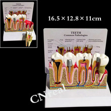 1 pc Dental Detachable Teeth Anatomical Model with Illustration and Base for Tooth Education and Anatomy iso anatomical larynx model with toungue and teeth laryngeal model