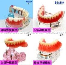 1 pc x Copertura di alta qualità In Resina dentale modello di impianto protesi Rimovibile denti modello per il dentista studio Deasin