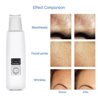 Skin Scrubber Massager Machine Ultrasonic Facial Skin Deeply Cleaning Device Anion Remove Dirt Blackhead Face Whitening Lifting