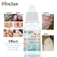 Fungal Liquid Nail Treatment Toe Removal Feet Foot For Onychomycosis Gel Essence Oil Makeup 10ML !
