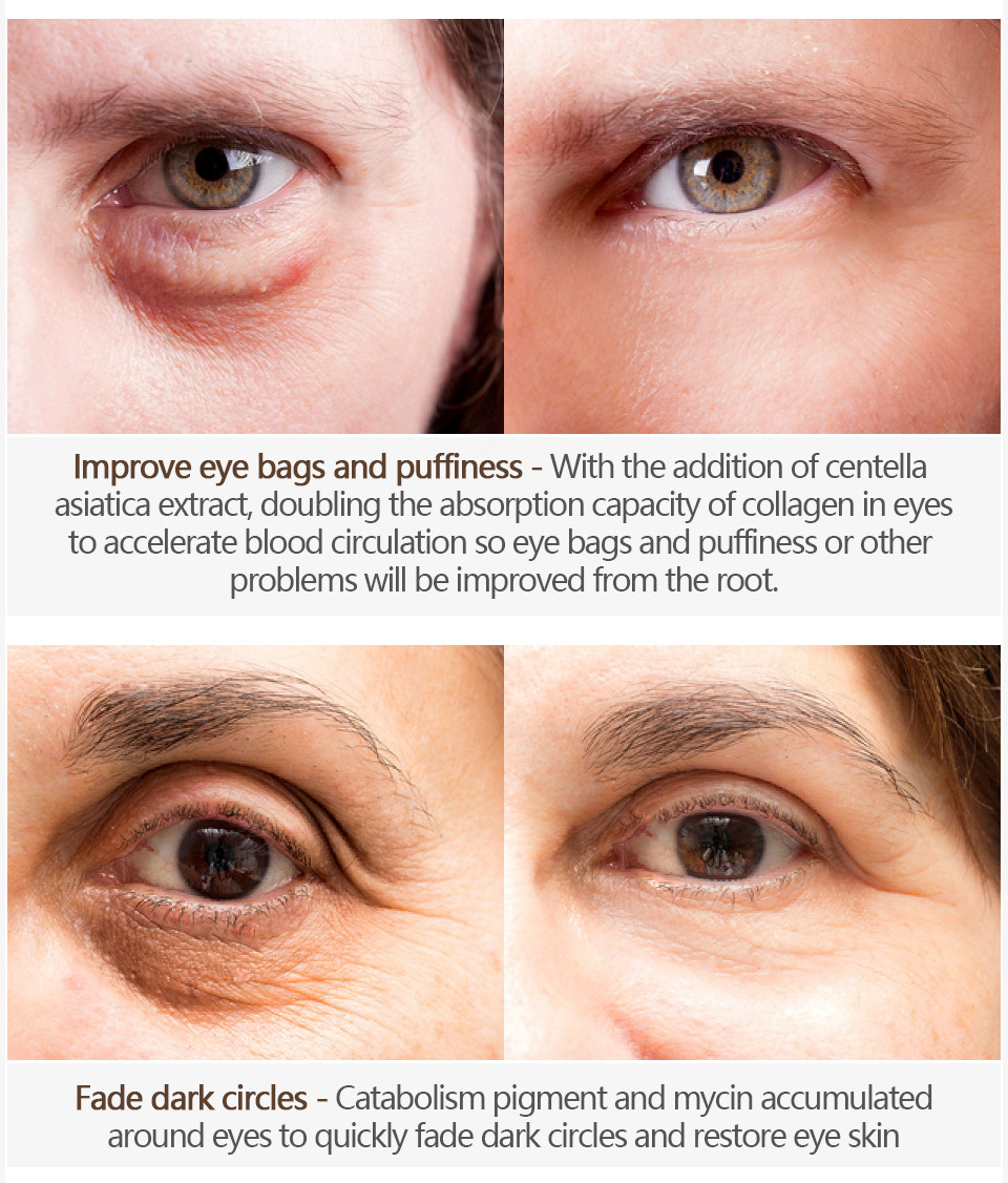 Firming anti-wrinkle eye protection 5