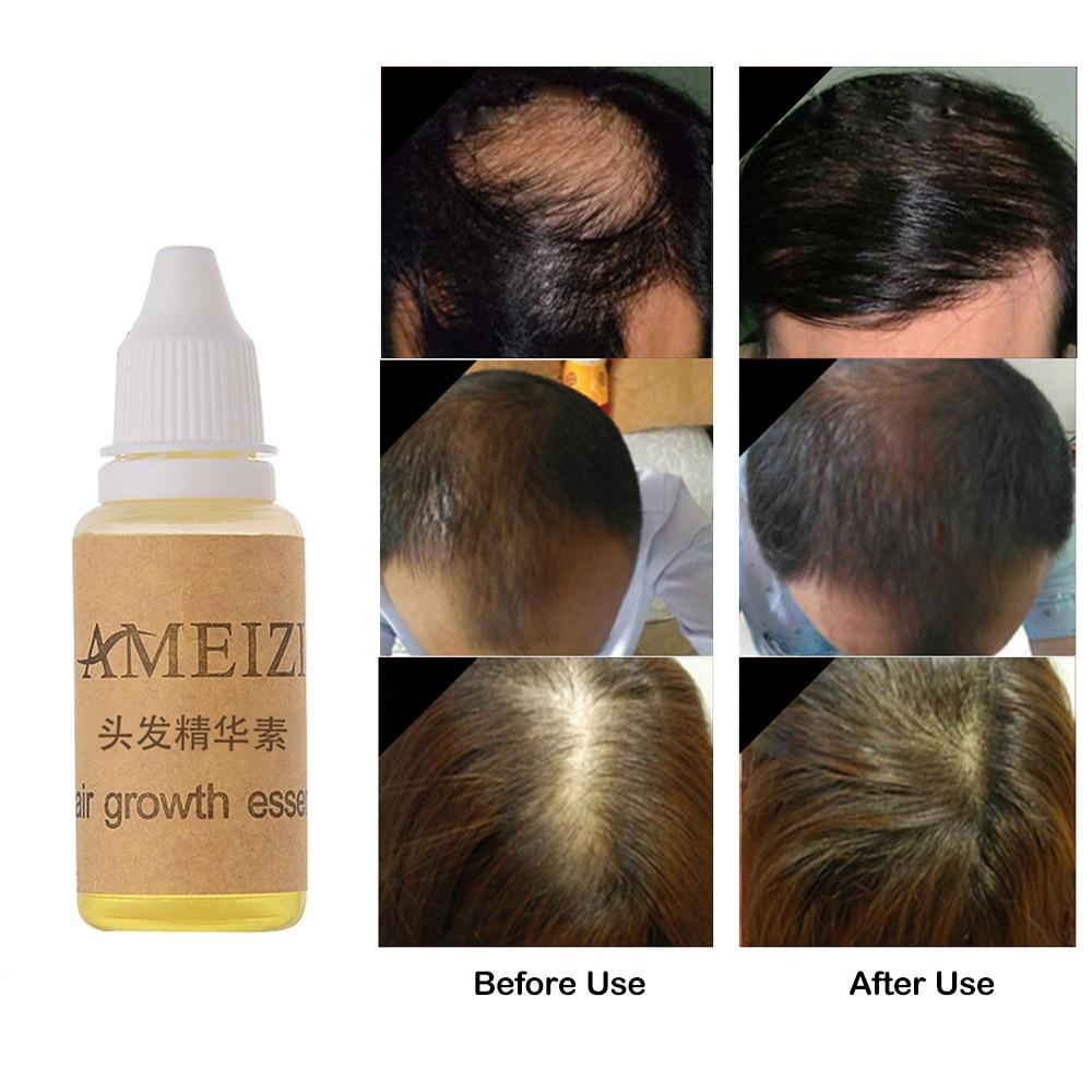 AMEIZII Hair Growth Enhancer Hair Thickening Essence Natural