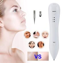 Laser Freckle Removal Machine Skin Mole Removal Dark Spot Remover for Face Wart Tag Tattoo Remover Pen Salon Beauty Care Massage недорого