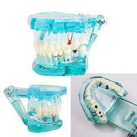מודל מחקר שיניים שיני הוראת דגם חדש פתולוגי המבוגר denshine