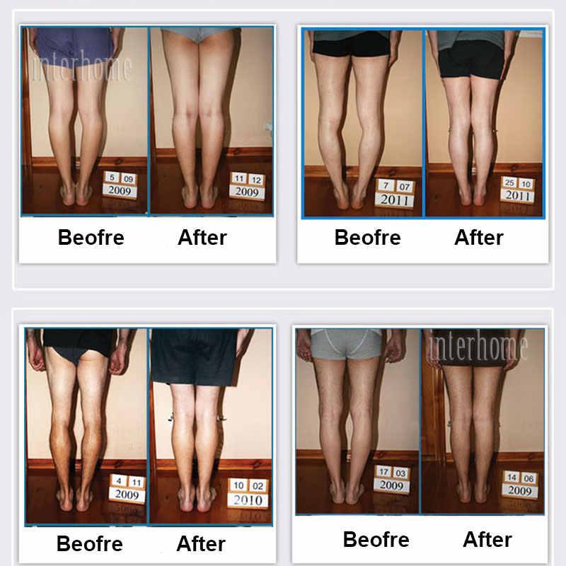 Original X/O tipo patas de silicona ortopédica plantillas ortopédicas corrección de pie plano belleza piernas moldeador de cuerpo pies cuidado zapatos pad