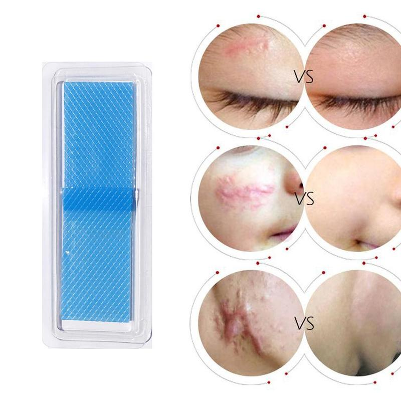 Efficient Caesarean Section Surgery Silicone Gel Removal Scar Sheet Therapy Patch For Acne Trauma Burn Scar Skin Repair Patch