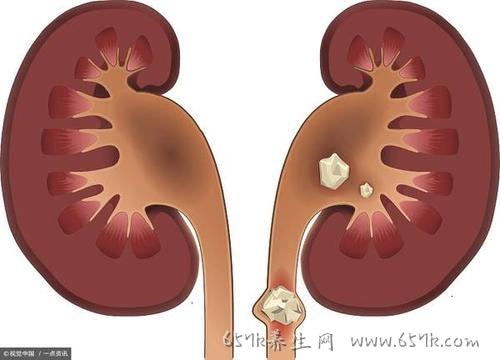肾结石的原因 喝水少运动少可能得这个病