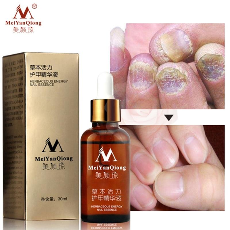 Fungal Nail Treatment Feet Care Essence Nail Foot Whitening Toe Nail Fungus Removal Gel Anti Infection Paronychia Onychomycosis Онихомикоз