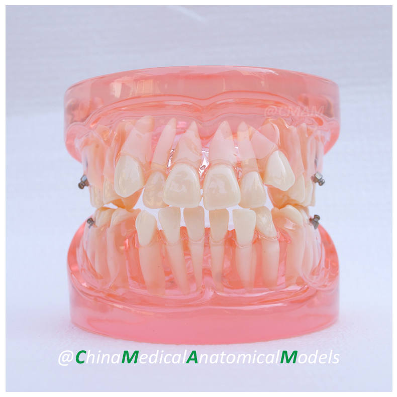 13022 DH202 Dentist Education Oral Dental Orthodontic Model, China Medical Anatomical Model dh202 2 dentist education oral dental ortho metal and ceramic model china medical anatomical model