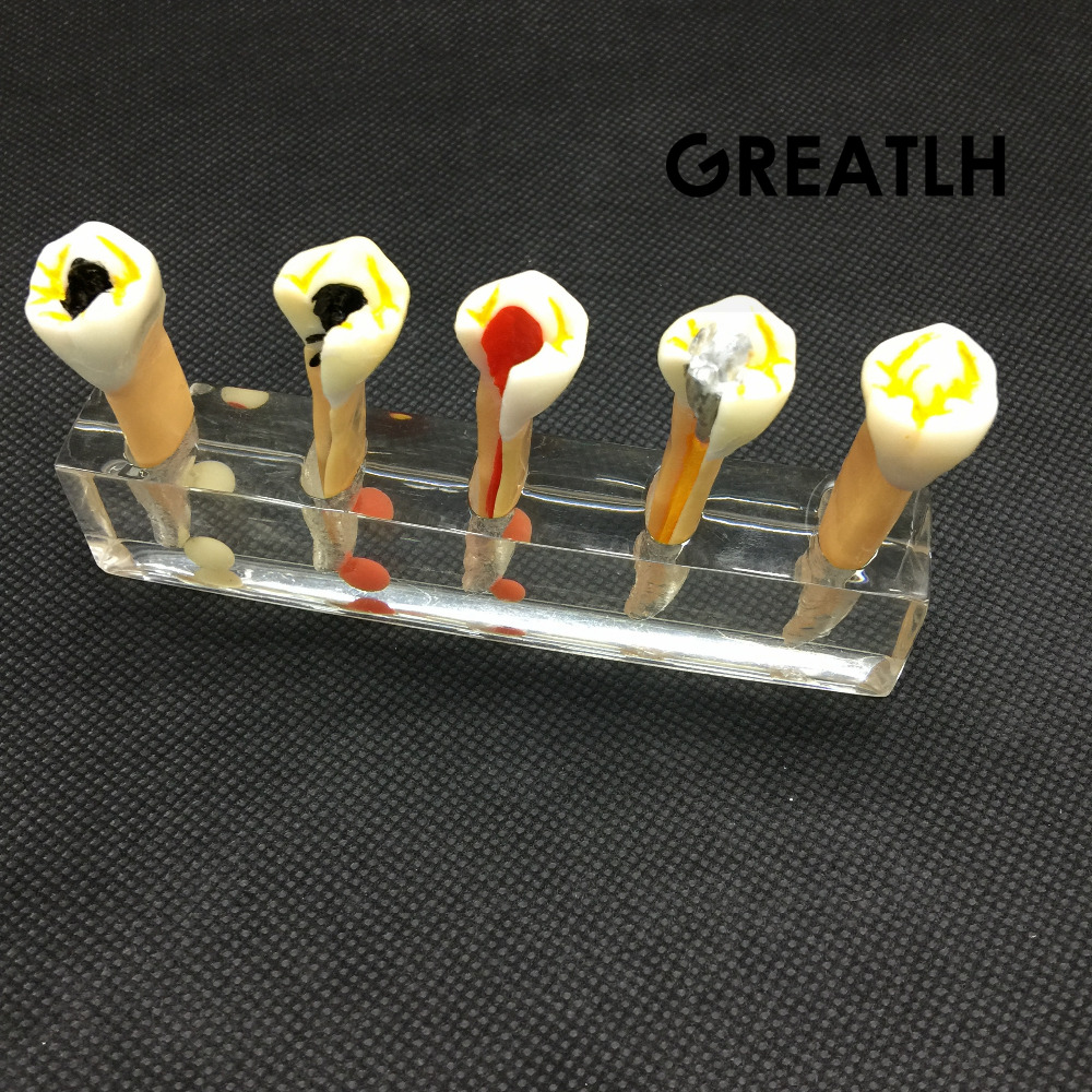 Dental 5 Stage Endodontic Treatment Model Dental Study Teach Teeth Model 1 pcs dental standard teeth model teach study
