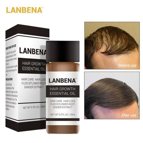 LANBENA Hair Care Ginger Extract Hair Growth Essential Oil Repair Strengthen Thicken Hair Prevent Hair Loss Nourish Awaken 20ml Pakistan