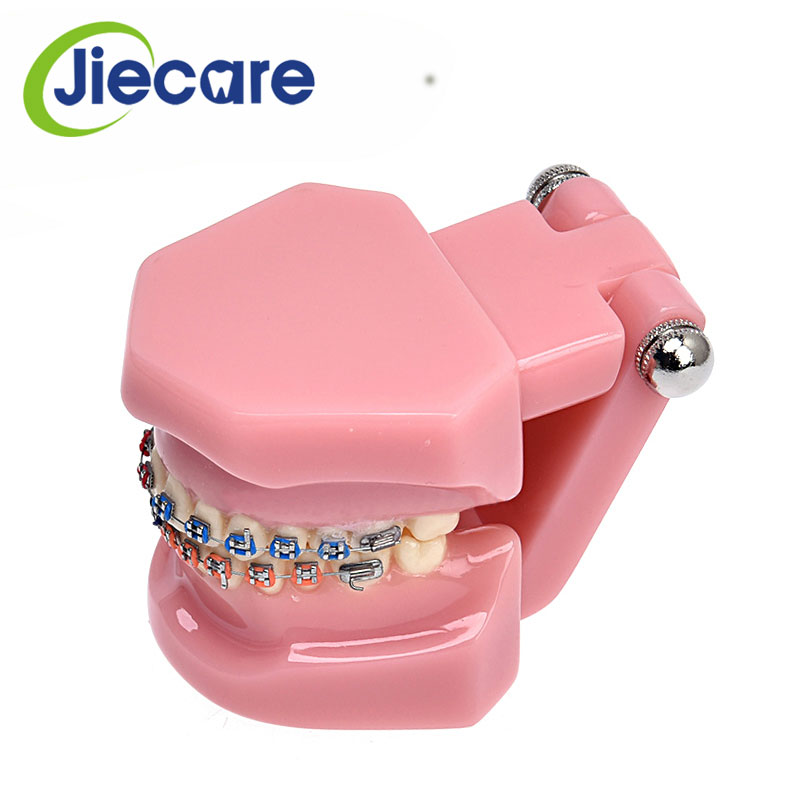1 PC Dental Pink Orthodontic Mallocclusion Teeth Model With Brackets Archwire Buccal Tube Tooth Extraction For Teaching teeth model blue dental orthodontics communication model with 4 types of brackets