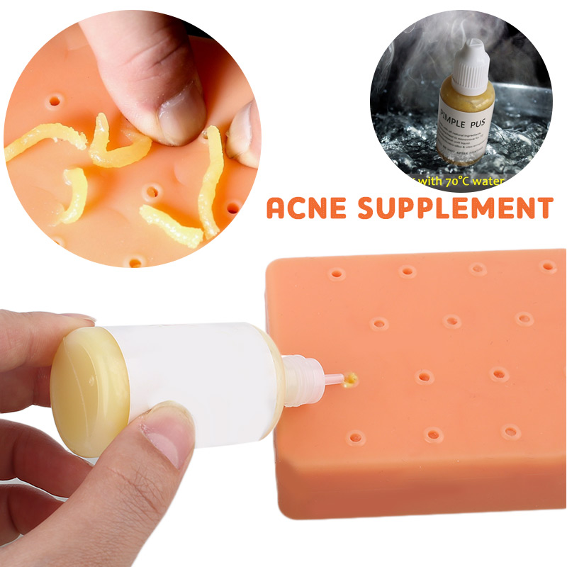 Squeezing Acne Liquid Replenisher Additive Toys Liquid Props 1pcs Toy Gags Stress Reliever Toys Popper Remover Funny