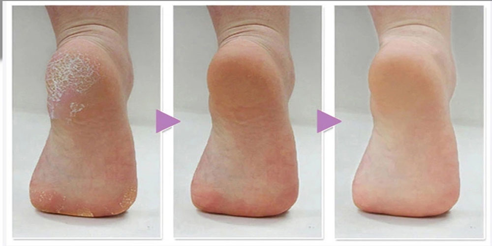 os pés pedicure cuidados pessoais pé esfoliante