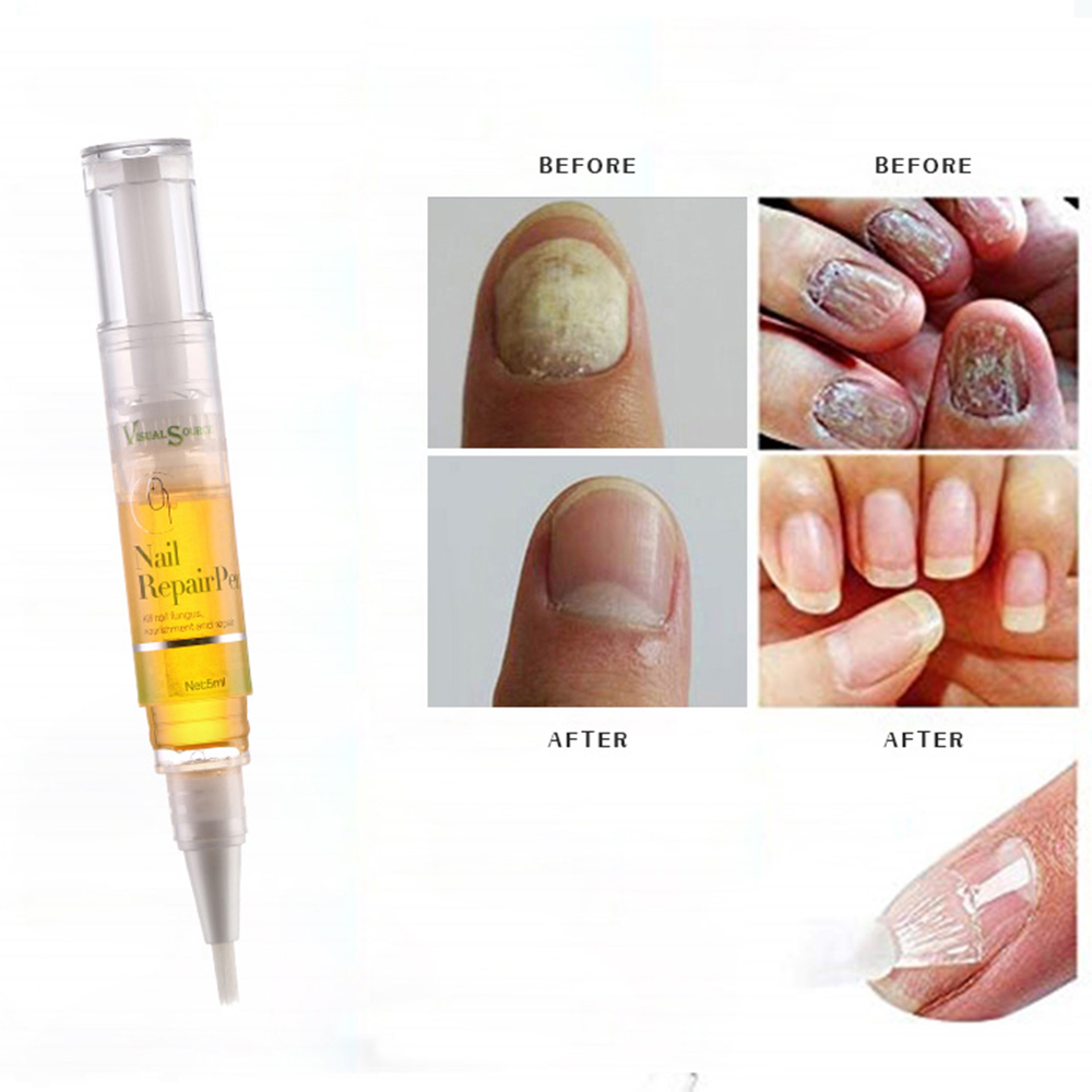 Anti Fungal Treatment Nail Pen Onychomycosis Paronychia Infection Herbal Toe Finger Nails Health Beauty Accessories TSLM2