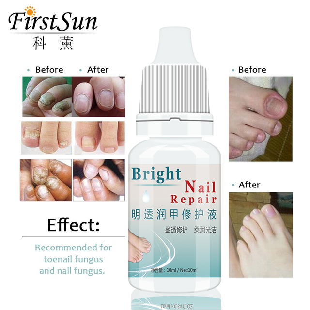 Firstsun 10ml Fungal Nail Treatment Essence Foot Whitening Chinese ...