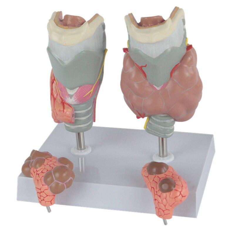 HeyModel Thyroid pathology model endocrine thyroid disease display model dissected model of dental disease dental disease pathology decomposition model