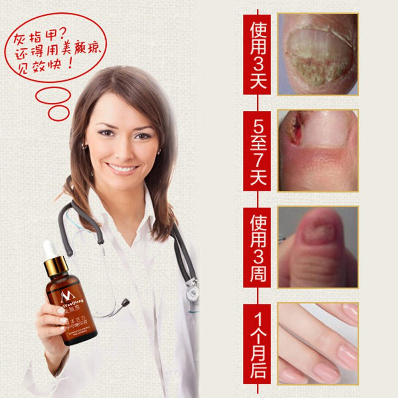 Fungal Nail Treatment Feet Care Essence Nail and Foot Whitening Toe Nail Fungus Removal Nail Gel 2