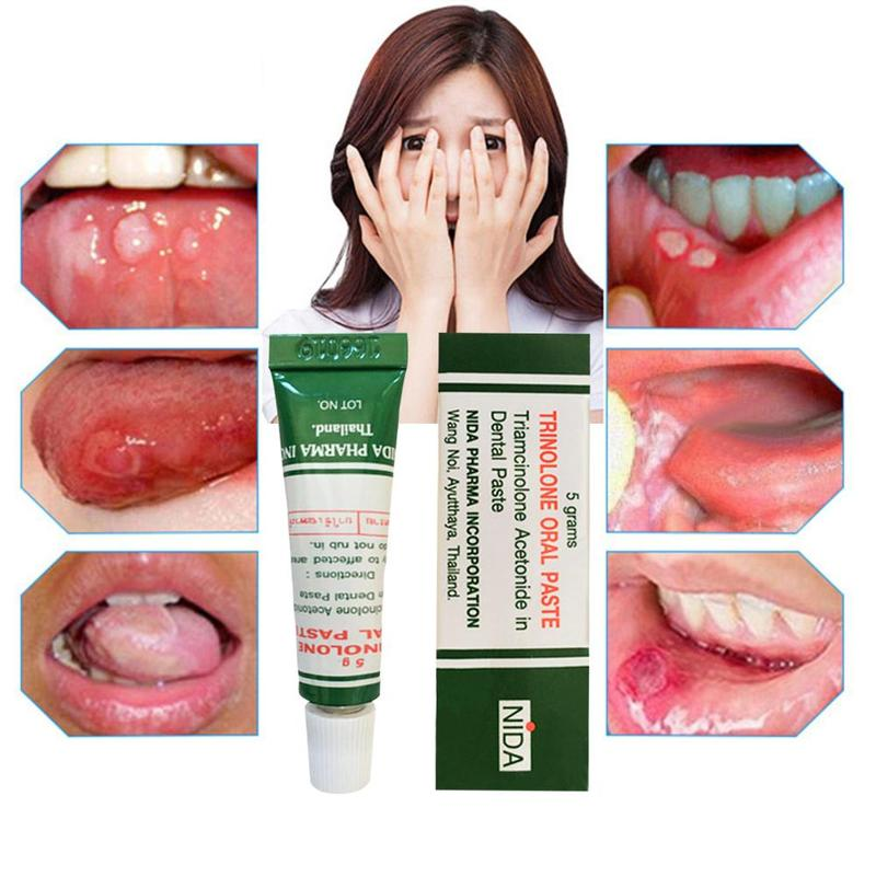 Oral Ulcer Treatment Cream Ointment Tongue Pain Ulceration Paste Plaster Inflammation Remedy Removal Herbal Antibacterial Gel